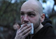 Избитый активист Игорь Ясин. Фото Л.Барковой/Грани.Ру