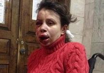 Татьяна Чорновол в больнице. Фото: pravda.com.ua