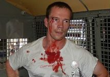 Избитый Ильдар Дадин в автозаке. Фото Марка Гальперина