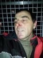 Избитый Юрий Чалдаев в автозаке